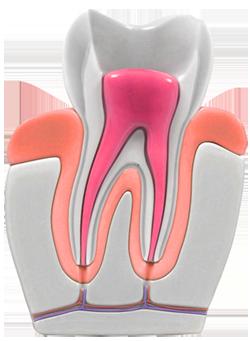Endodoncia obturación de conductos