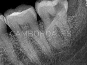 Diagnóstico 1 endodoncia de un cordal inferior con curvaturas apicales