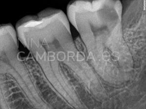 Diagnóstico 2 endodoncia de un cordal inferior con curvaturas apicales