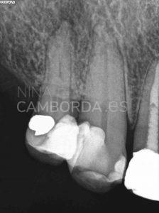 Diagnóstico endodoncia de un 14 con salida lateral en tercio medio radicular