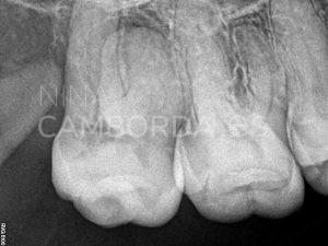 Diagnóstico endodoncia de un molar superior con curvatura radicular