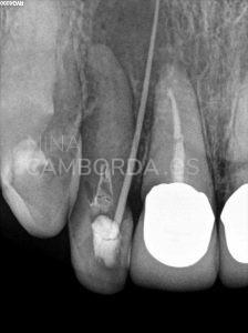 Diagnóstico fistulografía endodoncia de un 12 calcificado