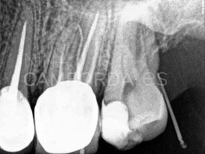 Diagnóstico fistulografía endodoncia de un 27 con salida lateral en tercio coronal de la raíz mesio-vestibular