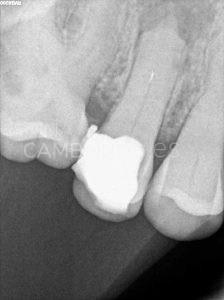 Diagnóstico reendodoncia de un 15 que presenta un instrumento fracturado en el tercio medio radicular