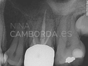 Diagnóstico reendodoncia de un 26 con salida lateral en tercio coronal de la raíz mesio-vestibular