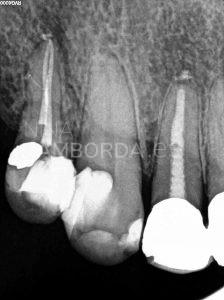 Final endodoncia de un 14 con salida lateral en tercio medio radicular