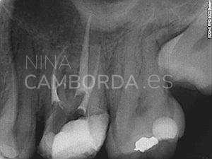 Final reendodoncia de un 26 con salida lateral en tercio coronal de la raíz mesio-vestibular