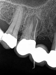 Diagnóstico fistulografía endodoncia de un 15 con lesión en furca y salida lateral hacia la misma