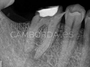 Diagnóstico reendodoncia de un 46 que presenta un instrumento fracturado en apical de la raíz distal. En este caso no conseguimos retirarlo pero sí sobrepasarlo