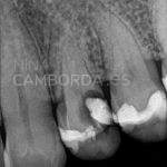 Diagnóstico endodoncia de un 24 con salidas laterales en ambos conductos